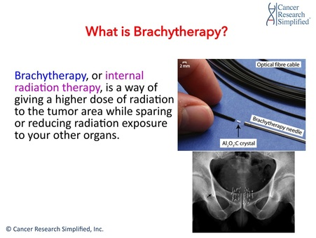 What is Brachytherapy - Cancer Research Simplified