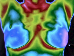 Cancer detection methods and diagnosis - Thermography - Cancer Research Simplified